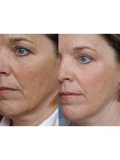 Skin Rejuvenation - The Chiltern Medical Clinic - Goring on Thames