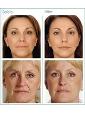 Treatment for Lines and Wrinkles - Hilton Skin Clinics