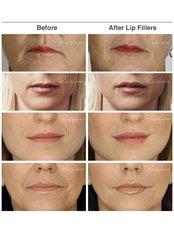 Dermal Fillers - Hilton Skin Clinics