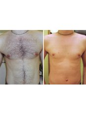 Laser Hair Removal - Full Front - Package of 6 - The Chiltern Medical Clinic - Central Reading