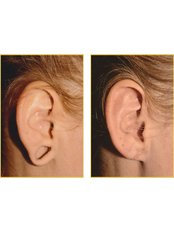 Torn earlobe repair - The Chiltern Medical Clinic - Central Reading