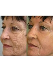Deep Chemical Peel - The Chiltern Medical Clinic - Central Reading