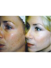 IPL Skin Rejuvenation - The Chiltern Medical Clinic - Central Reading