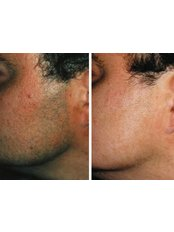 Laser Hair Removal - Beard (Male Inc. Neck Front) - Package of 3  - The Chiltern Medical Clinic - Central Reading