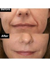 Radiesse™ / Radiance™ Filler - The Chiltern Medical Clinic - Central Reading