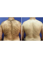 Laser Hair Removal - Full Back (Inc. Back of Neck) - Package of 3 - The Chiltern Medical Clinic - Central Reading