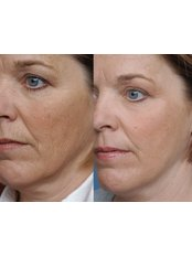 Skin Rejuvenation - The Chiltern Medical Clinic - Central Reading