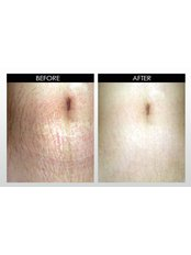 eDermaStamp STRETCH MARKS (incl. Neo Strata Bionic Face Cream) - The Chiltern Medical Clinic - Central Reading