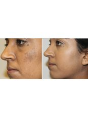 Pigmentation Consulation/Minor Surgery - The Chiltern Medical Clinic - Central Reading