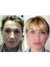 Dermal Fillers - The Cosmetic Skin Clinic - Stoke Poges