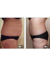 Fat Dissolving Injections - Bristol Skin Clinic
