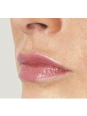 Lip Augmentation - Cosmedics UK Bristol