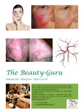 Facial Thread Veins Treatment - The Beauty- Guru