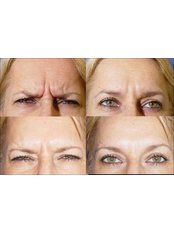 Treatment for Lines and Wrinkles - Sandon Court Clinic Plymouth