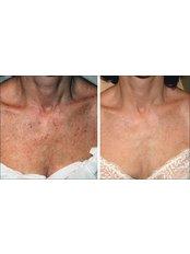 IPL Skin Rejuvenation Full Face - Sandon Court Clinic Plymouth