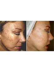 Chemical Peel - Sandon Court Clinic Plymouth