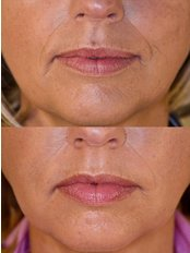 Teosyal™ Filler - The Green Room - Bournemouth Clinic