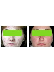 Acne Treatment - The Green Room - Bournemouth Clinic