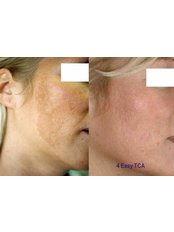 Age Spots Removal - The Green Room - Bournemouth Clinic