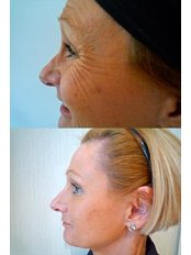 Treatment for Wrinkles - The Green Room - Bournemouth Clinic