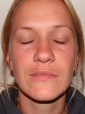 Dermal Fillers - The Green Room - Bournemouth Clinic