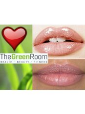 Lip Augmentation - The Green Room - Bournemouth Clinic
