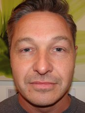 Cheek Augmentation  - The Green Room - Bournemouth Clinic