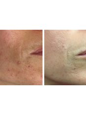 Skin.ID - Chemical Peel: Before and After