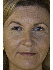 Dermal Fillers - Finesse Aesthetics & Beauty
