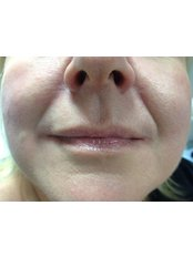 Dermal Fillers - Holderness Laser Clinic