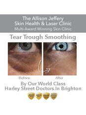 Dermal Fillers - Tear Troughs | Was £399 - Now £299 by World Expert Dr Rami - Allison Jeffery Skin Health and Laser Clinic
