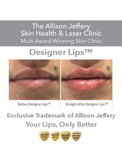 Designer Lips ™ - Advanced & Exclusive (0.5ml Syringe) £199 for limited time only | £225 on Saturday - Allison Jeffery Skin Health and Laser Clinic
