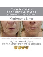 Dermal Fillers - Marionette Lines  (Corners of Mouth)  - Allison Jeffery Skin Health and Laser Clinic