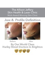 Chin & Profile was £1500 Now £750 - Allison Jeffery Skin Health and Laser Clinic