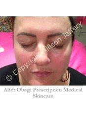 Obagi™ Skin Care - Allison Jeffery Skin Health and Laser Clinic