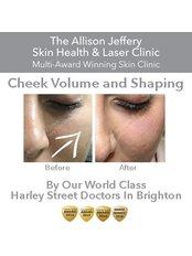 Cheek Augmentation | Was £399 - now £299 - Allison Jeffery Skin Health and Laser Clinic