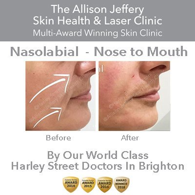 Allison Jeffery Skin Health and Laser Clinic in Withdean, Brighton