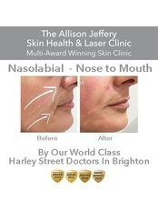 Dermal Fillers - Nasolabial  (Nose to Mouth lines)  - Allison Jeffery Skin Health and Laser Clinic