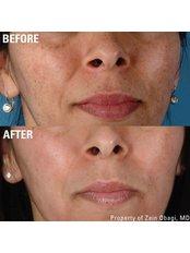 Pigmentation Treatment - Skin Enhance Clinic