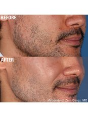 Rosacea Treatment from - Skin Enhance Clinic