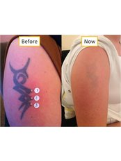 Tattoo Removal - The Tattoo Removal Clinic