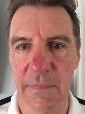 Rosacea Treatment - Clinic 505