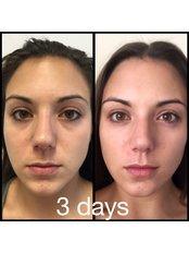 Collagen Facial - Clinic 505