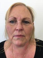 Facial Rejuvenation - Clinic 505
