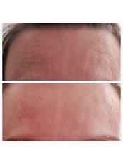 Acne Scars Treatment - Clinic 505