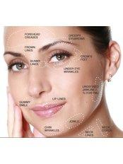 Cheek Augmentation - Julia Hart Skin Clinic