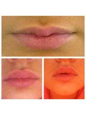 Lip Augmentation - Ageless