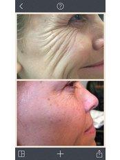 Treatment for Wrinkles - Rosmedics