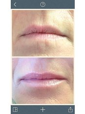 Lip augmentation (soft) - Rosmedics