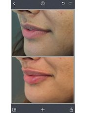 Lip Augmentation - Rosmedics